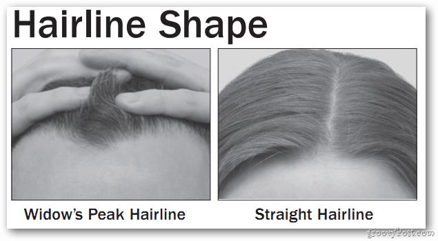 Hairline Shape